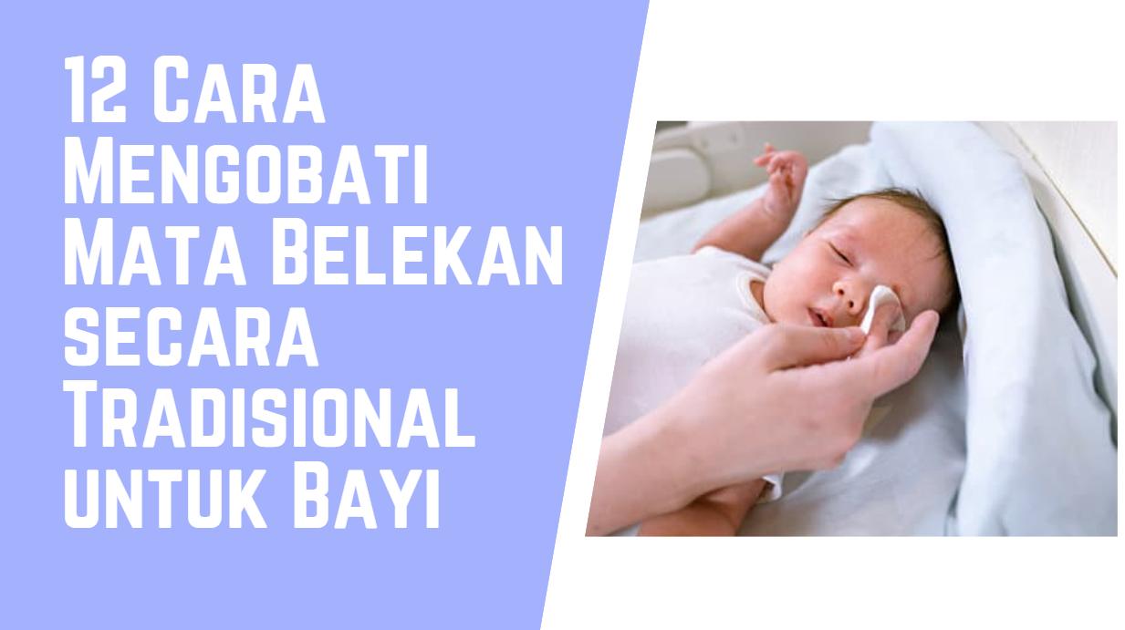 Cara Mengobati Mata Belekan secara Tradisional untuk Bayi